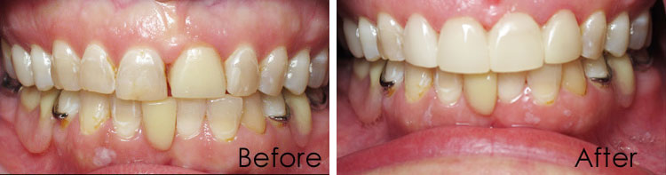 Dental before and after photos in Morgan City, LA